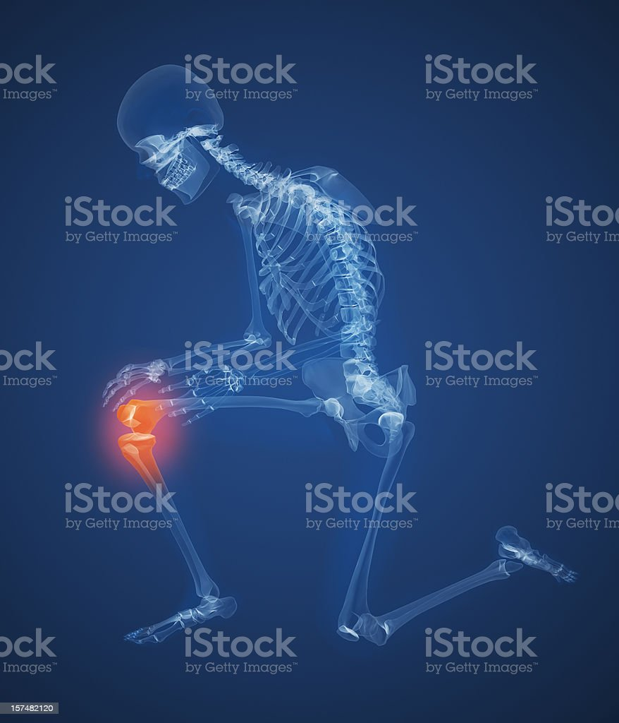 Human Knee Pain royalty-free stock photo