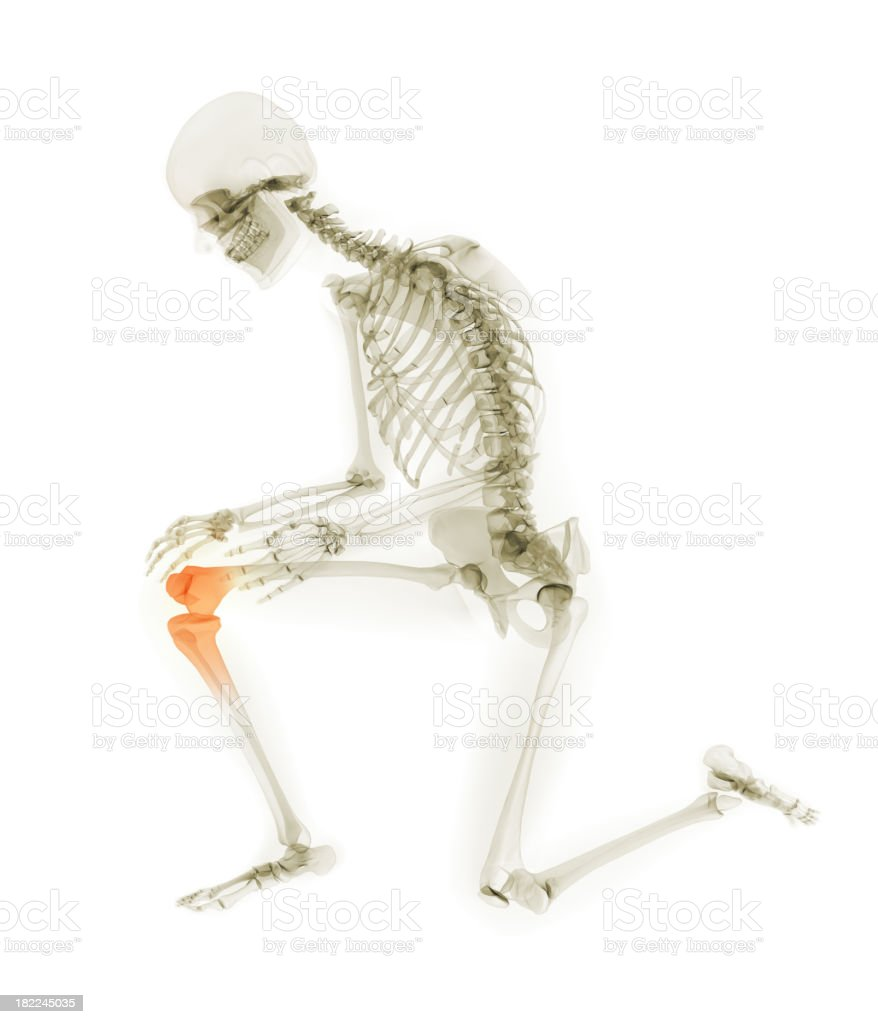 Human Knee Pain royalty-free stock photo
