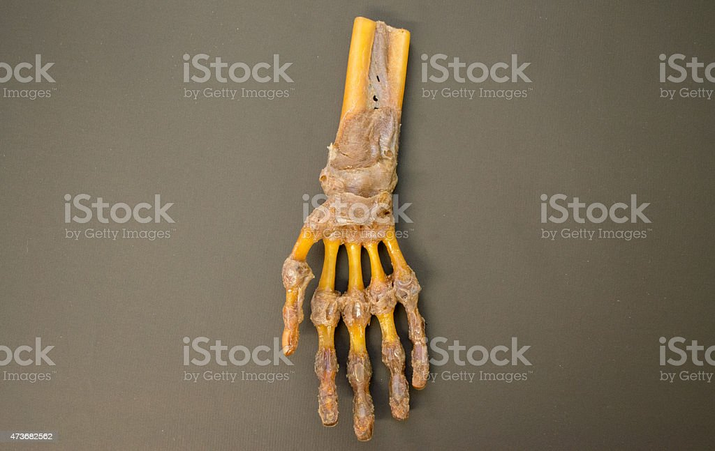 Human left hand dissected - top view - HD Resolution stock photo