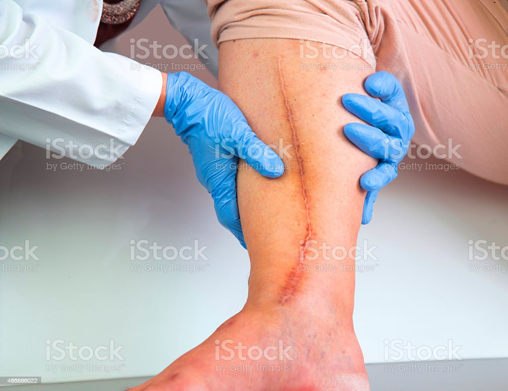 Human leg with postoperative scar of cardiac surgery stock photo