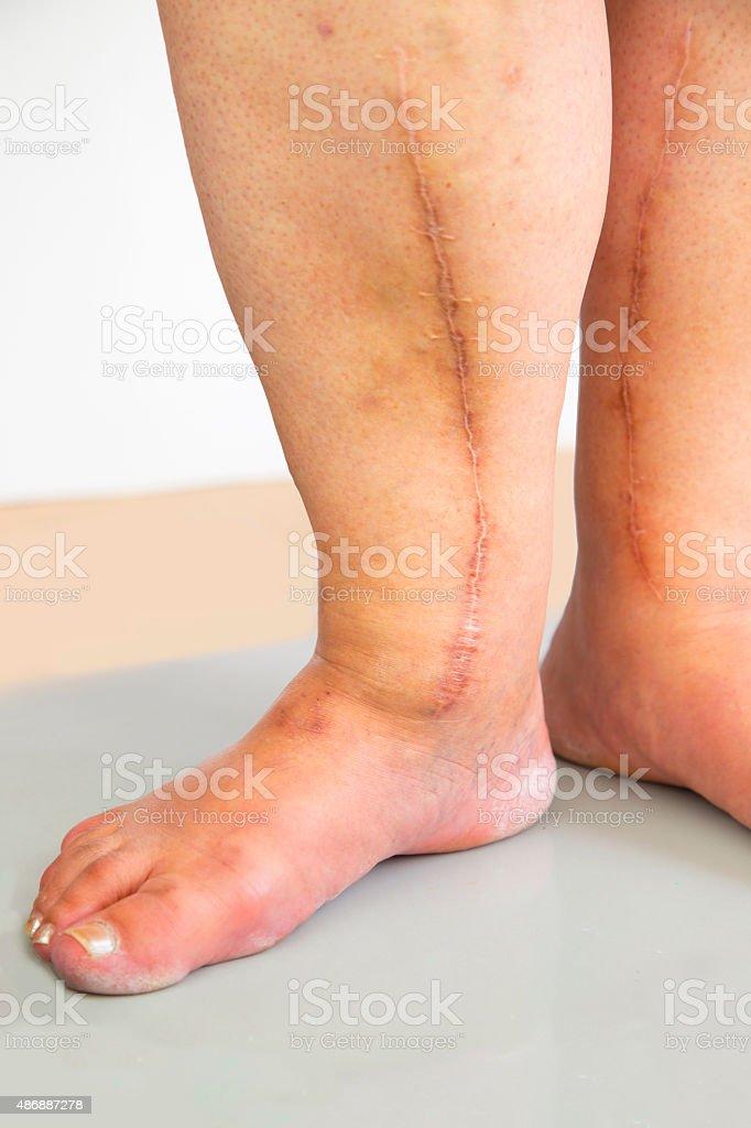 Human leg with postoperative scar of cardiac surgery stock photo