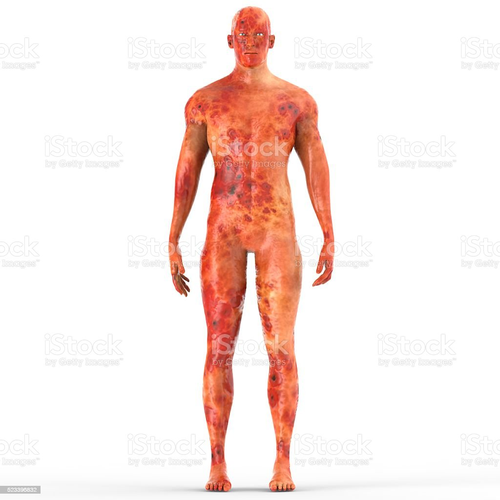 Human Male Muscle Body with Burns stock photo