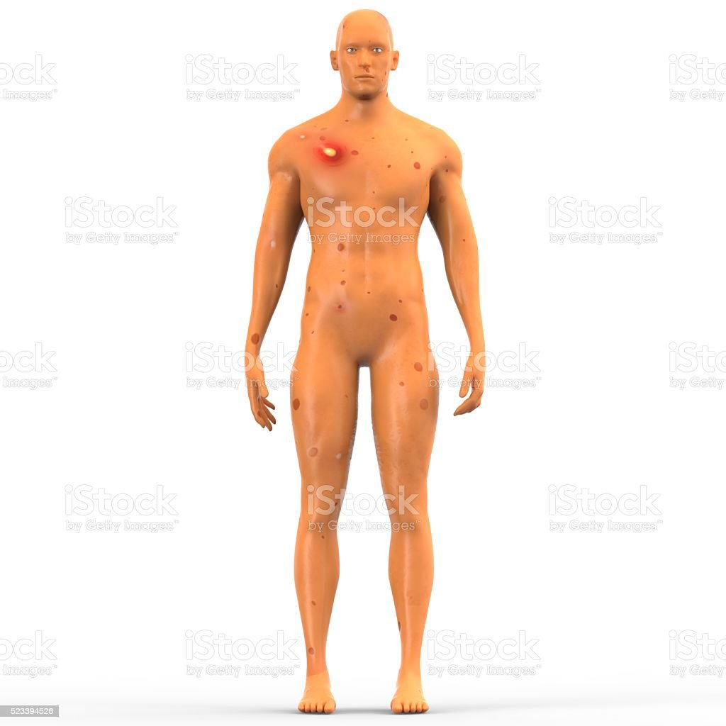 Human Muscle Body with Disease stock photo