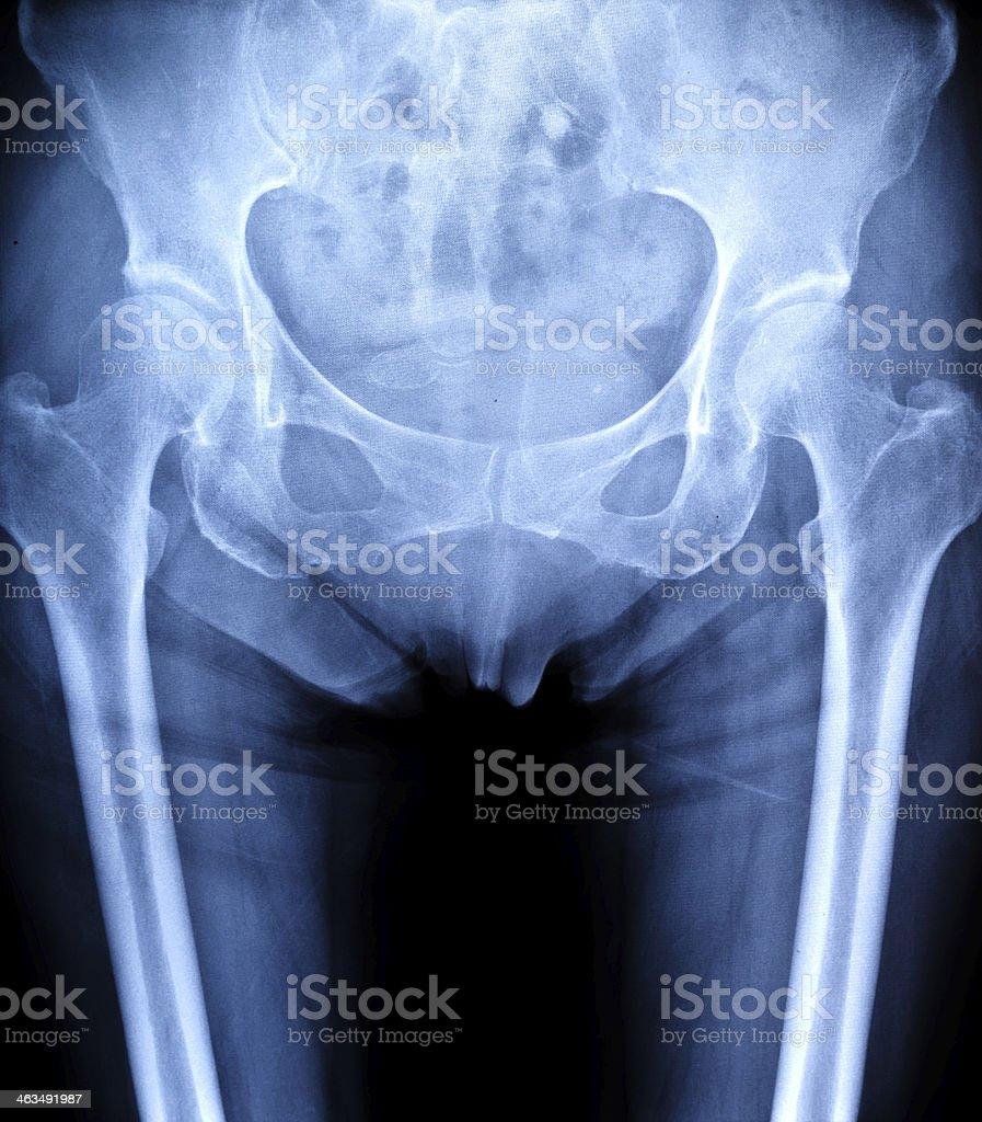 human Pelvis x-ray royalty-free stock photo