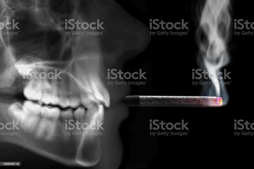 human radiography smoking stock photo