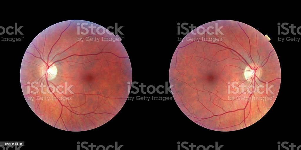 Human Retinas - Left and Right Eye stock photo