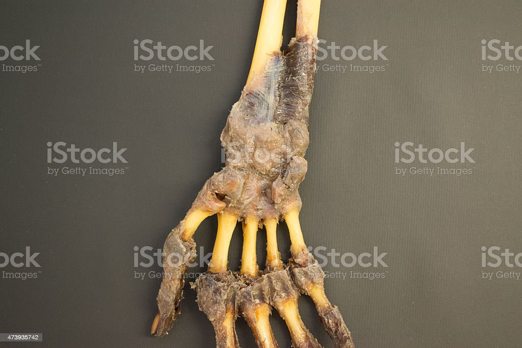 Human right hand dissected - palmar view detail - HD stock photo