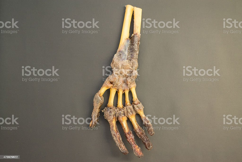 Human right hand dissected - palmar view - HD Resolution stock photo