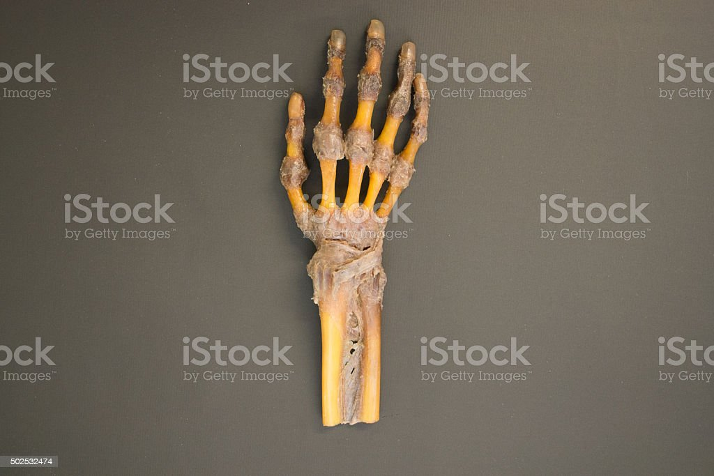 Human right hand dissected - top view stock photo