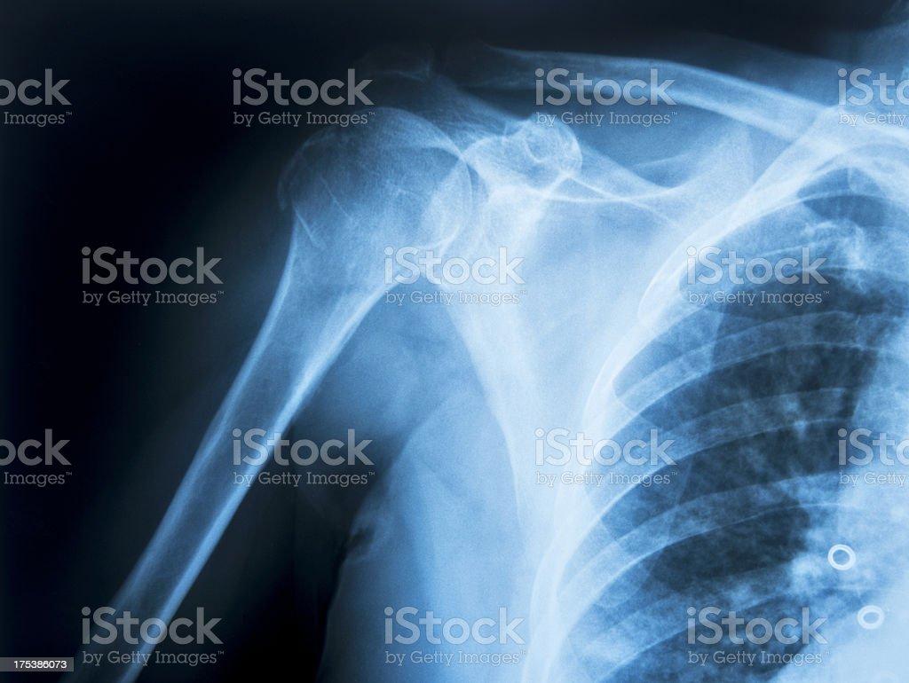 Human Shoulder stock photo