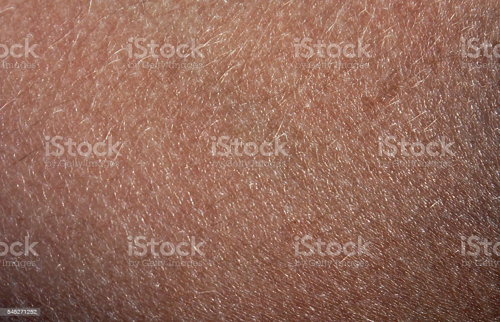 Human skin with hair. stock photo