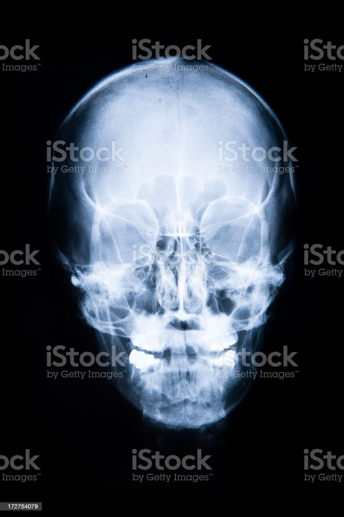 human skull head x-ray (front view) XXL royalty-free stock photo