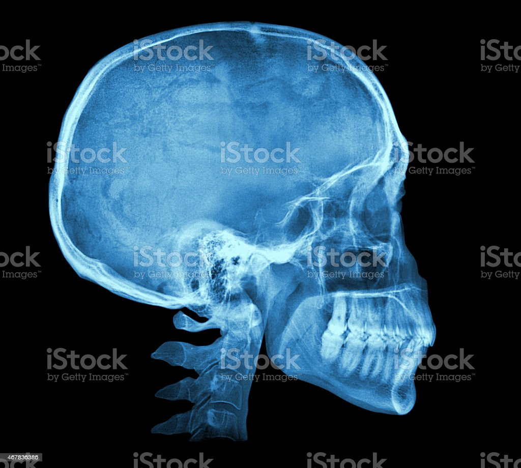 Human skull X-ray image stock photo