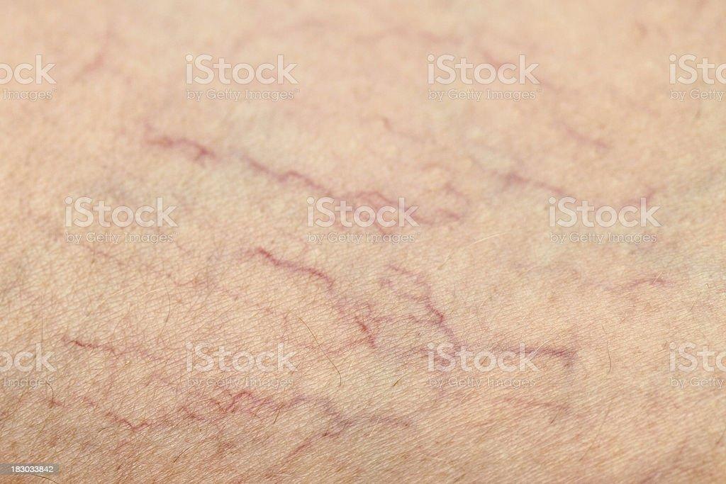 Human Spider Veins on Leg Closeup stock photo