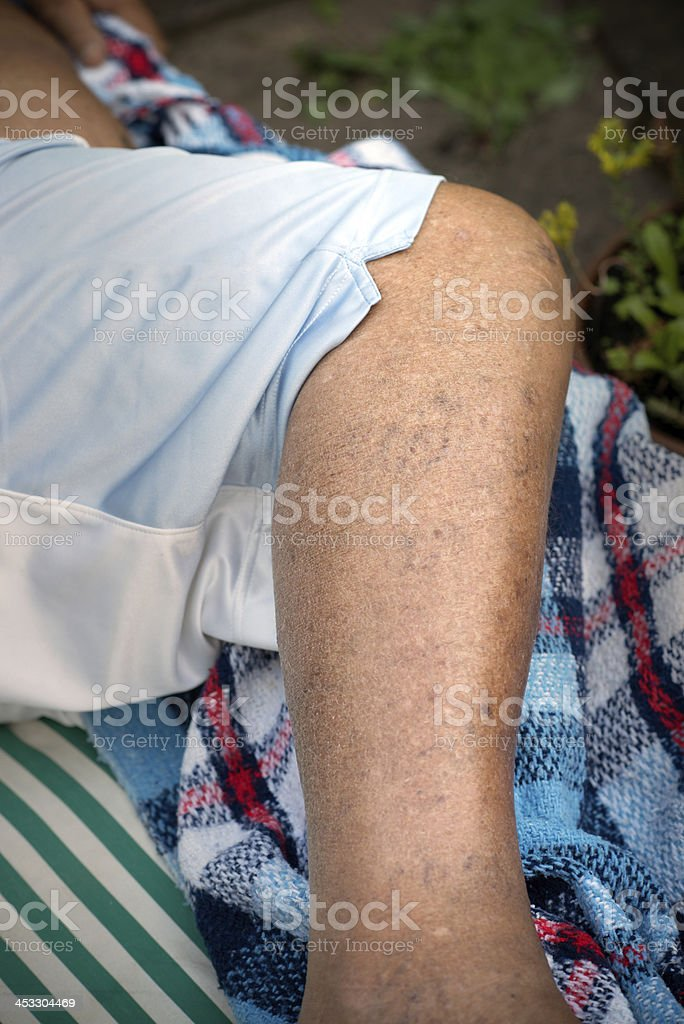 Human Spider Veins on Leg stock photo