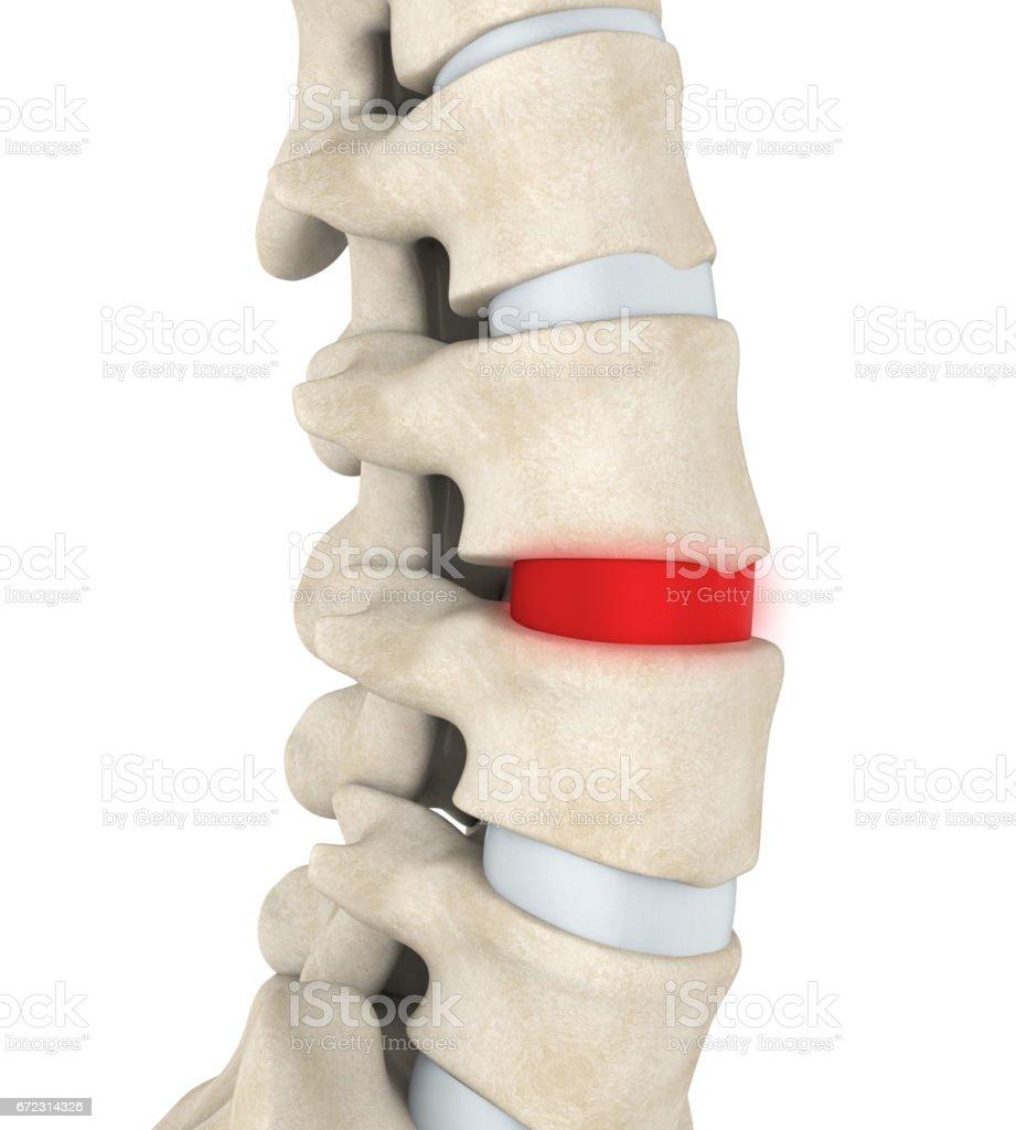 Human Spine Disc Degenerative stock photo