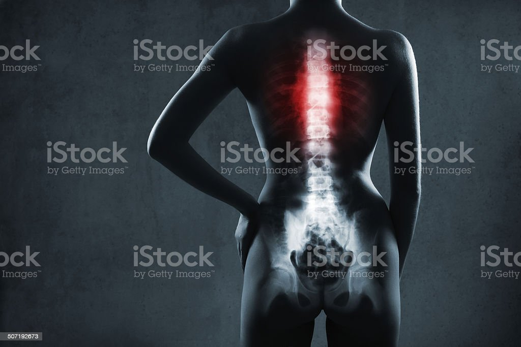 Human spine in x-ray stock photo