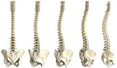 Human spine-5 views XXXL