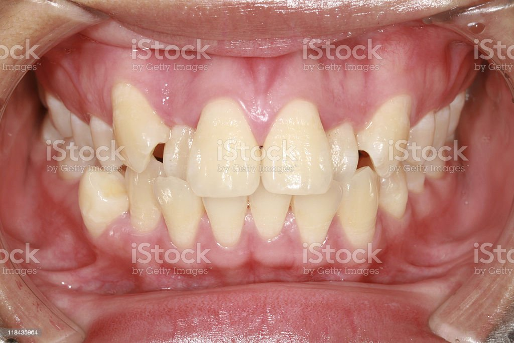 Human teeth stock photo