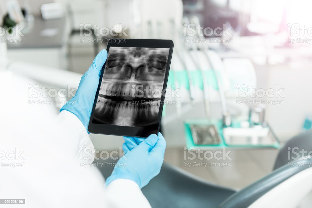 Human teeth x-ray on the tablet stock photo