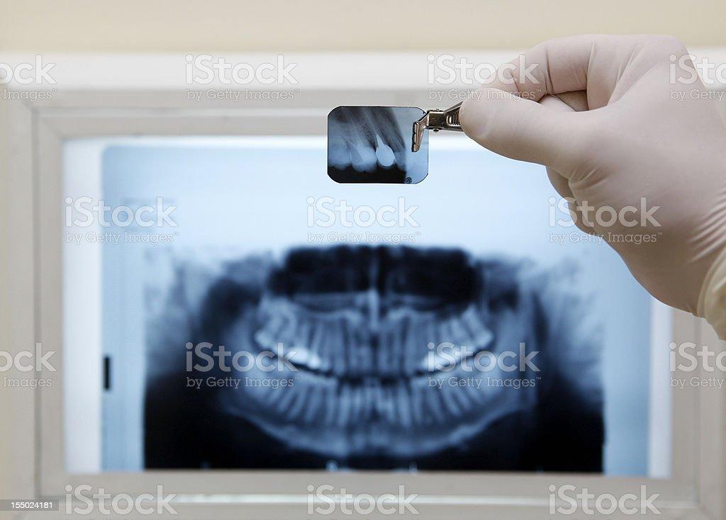 Human Teeth X-ray stock photo