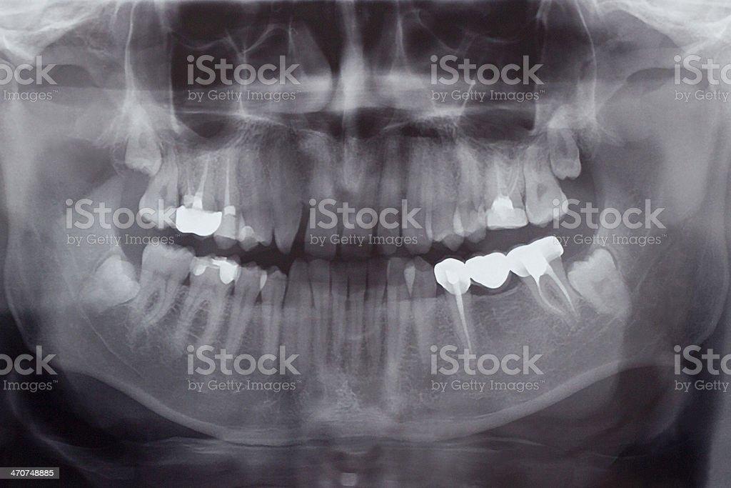 Human Teeth, X-Ray stock photo