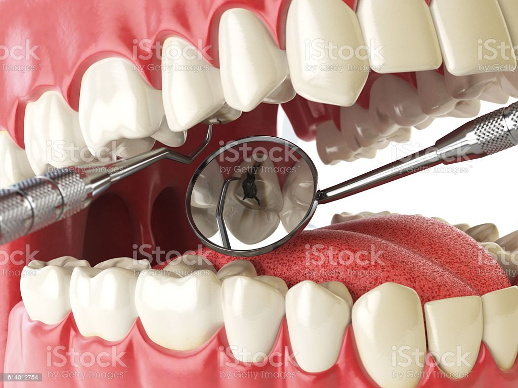 Human tooth with cariesand hole and tools. Dental searching conc stock photo