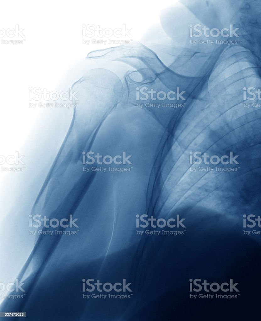 Humerus fracture  x-ray image, AP view stock photo