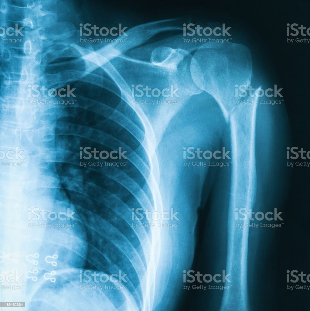Humerus fracture x-ray image. stock photo