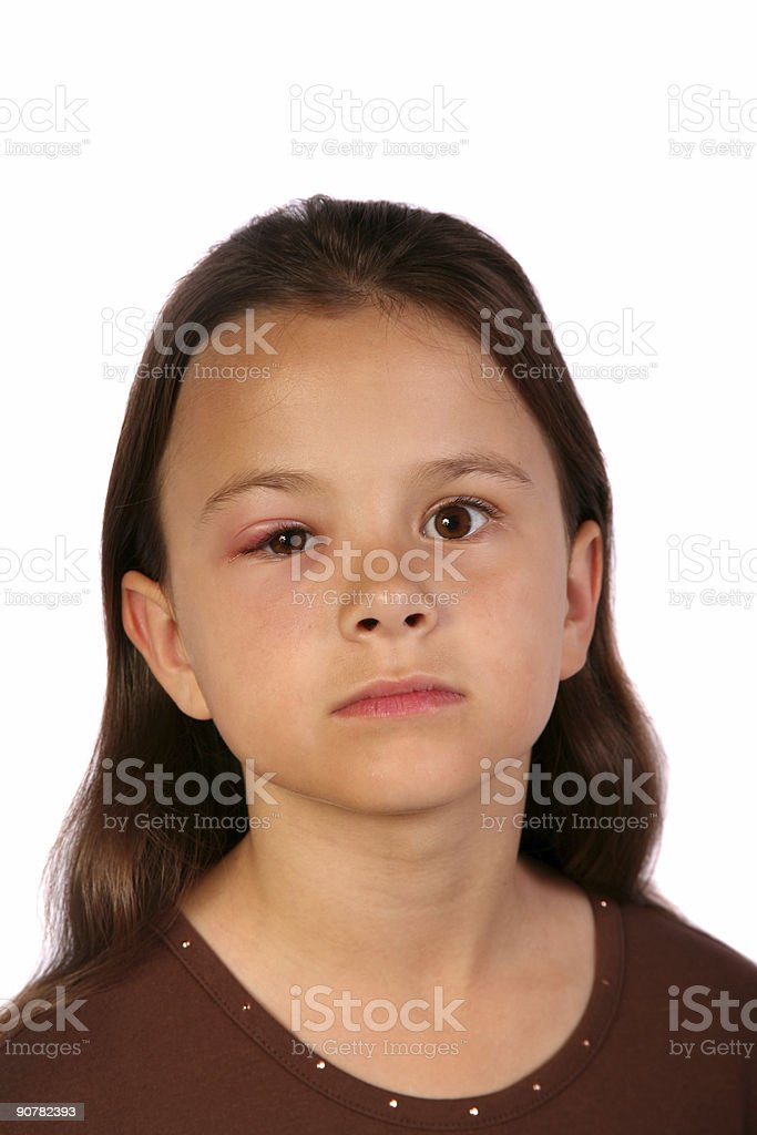 Hurt child stock photo