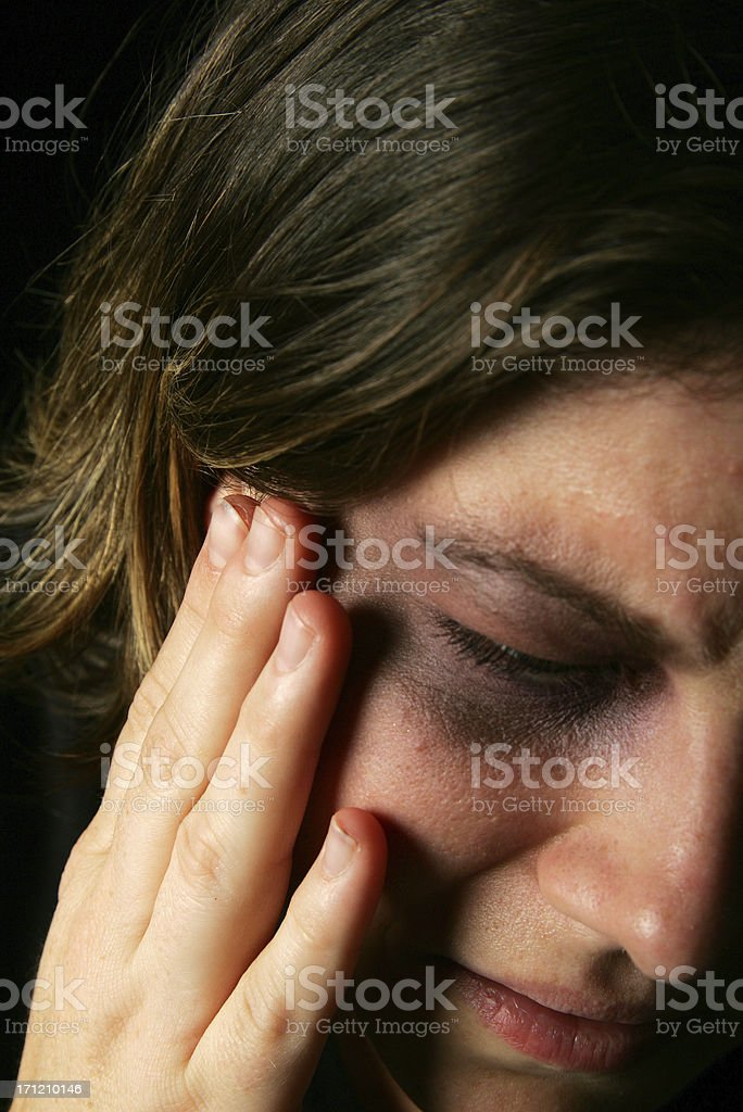 Hurt woman bruised eye royalty-free stock photo