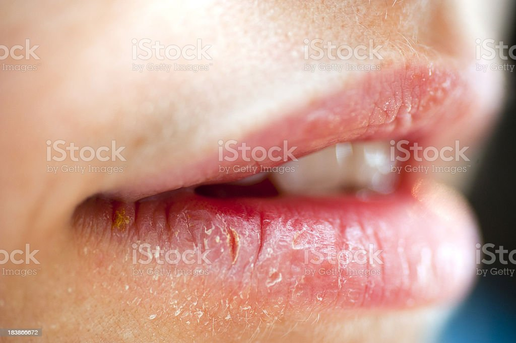 hurted lips stock photo