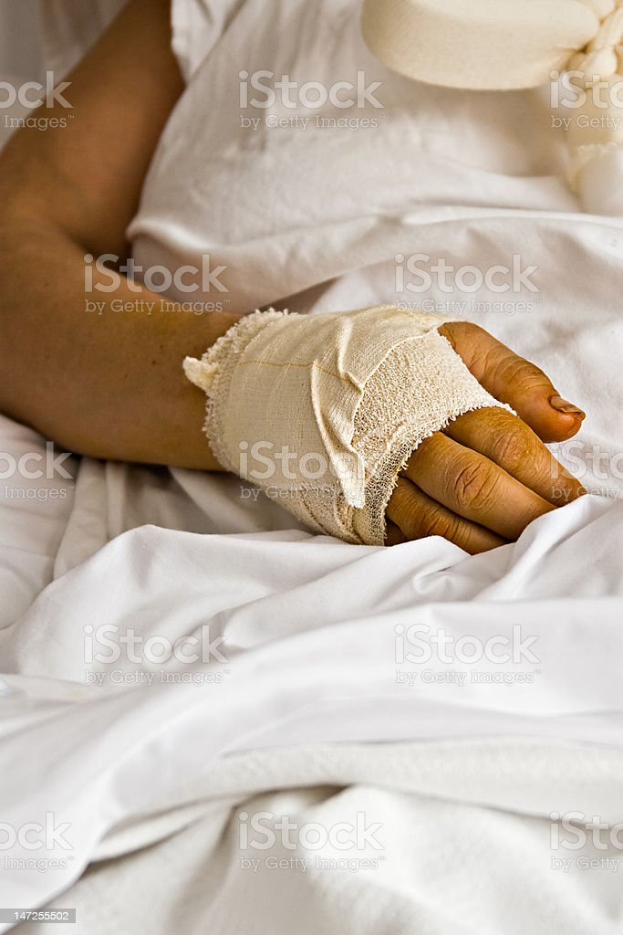 Hurting hand royalty-free stock photo