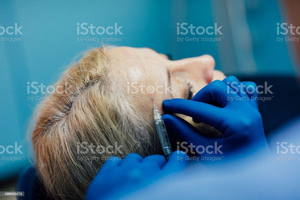 Hyaluron Anti-Ageing Treatment. stock photo