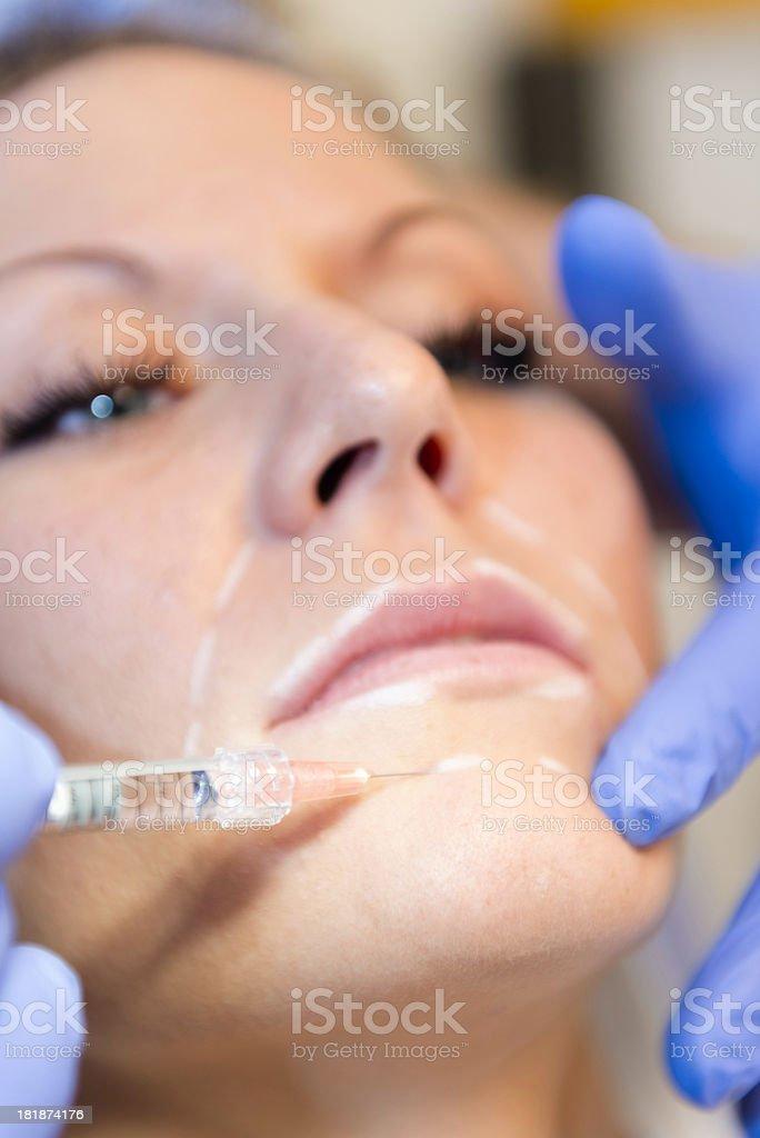 Hyaluronan injection royalty-free stock photo