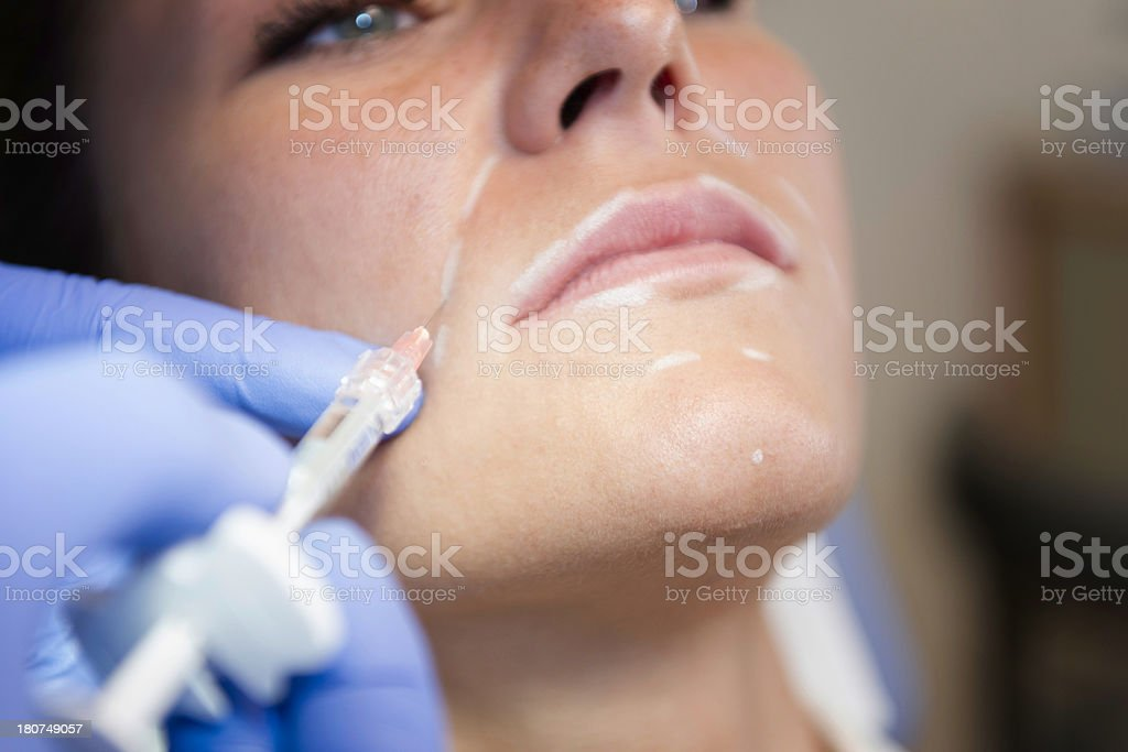 Hyaluronan treatment stock photo