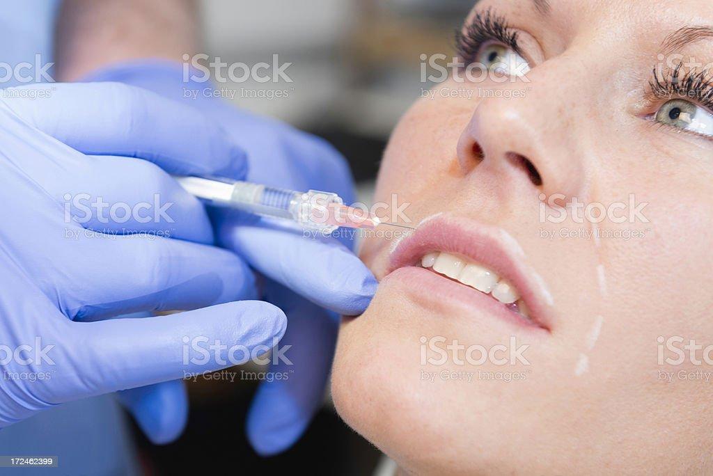 Hyaluronic acid beauty treatment royalty-free stock photo