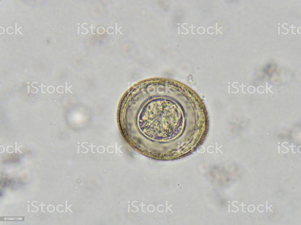 Hymenolepis diminuta (egg) stock photo