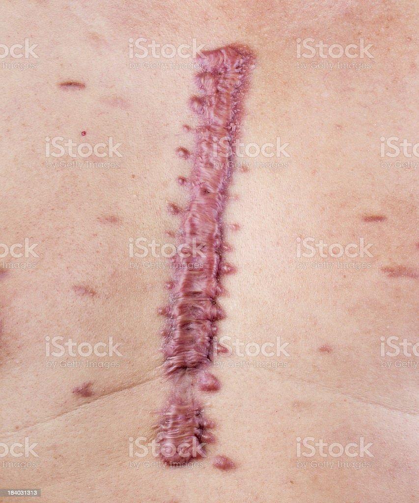 hypertrophic scar stock photo