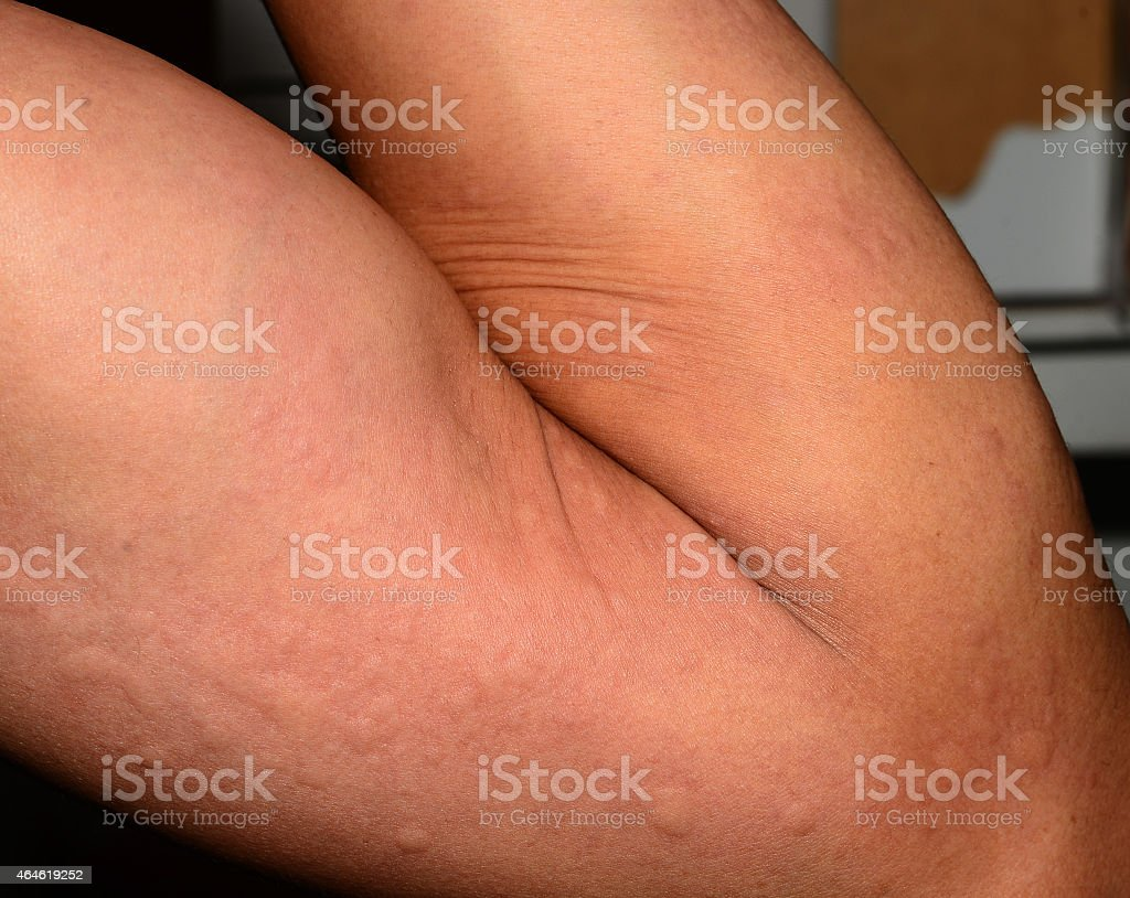 ill allergic rash dermatitis eczema skin texture. stock photo