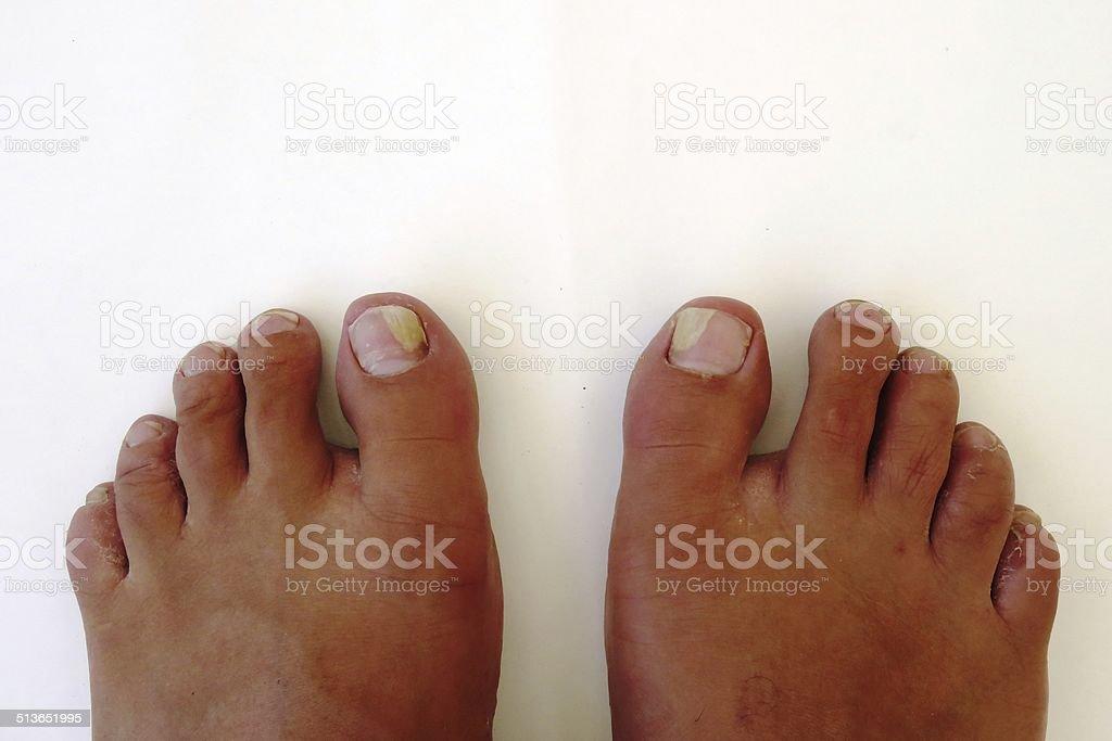 Ill fungus foots stock photo