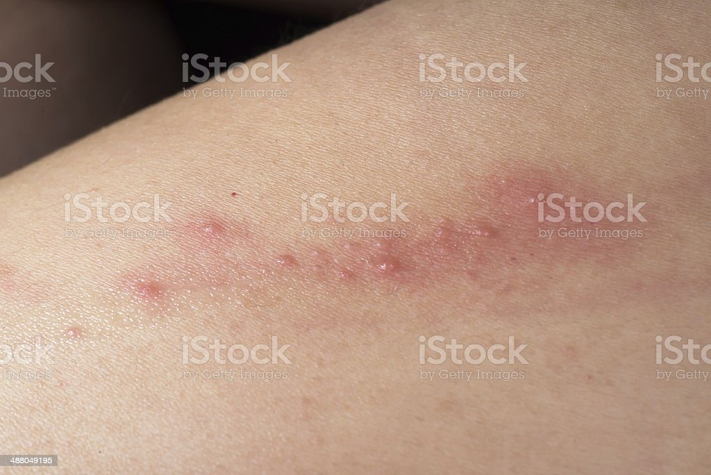 ill skin disease eczema royalty-free stock photo
