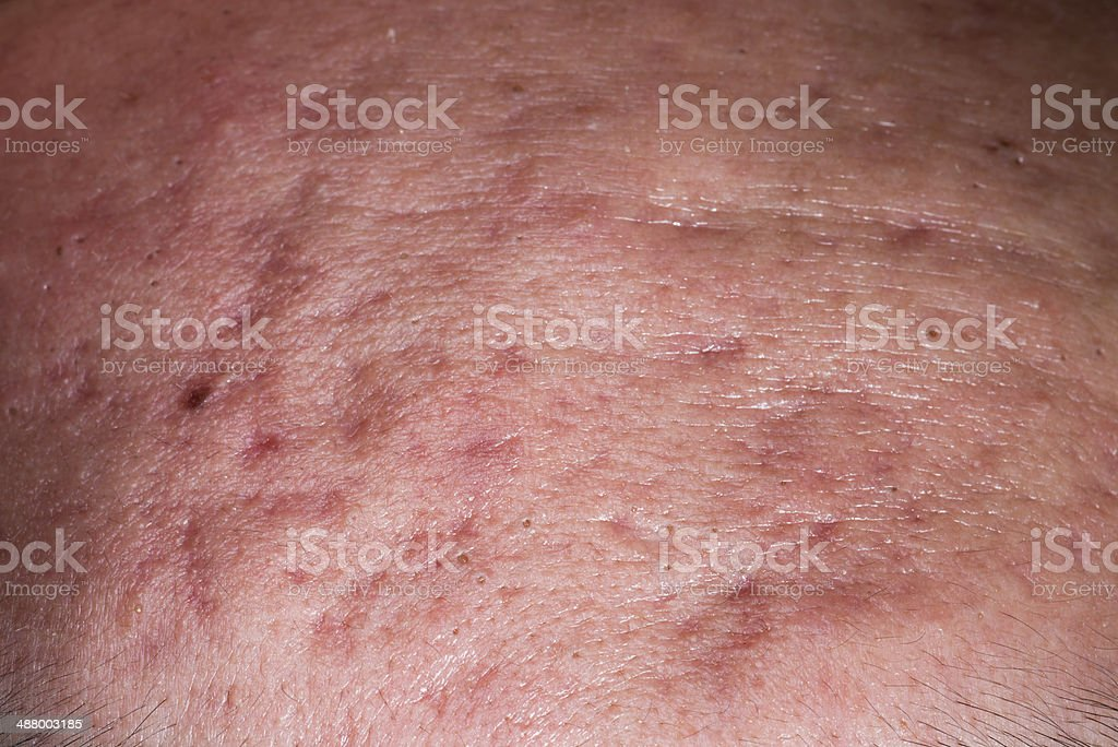 ill skin disease, whelk pimple on face. royalty-free stock photo