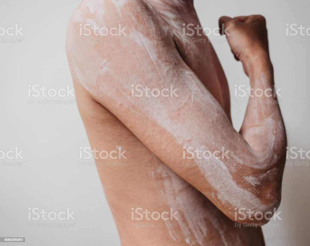 ill skin epifolliculitis with rash of a man stock photo