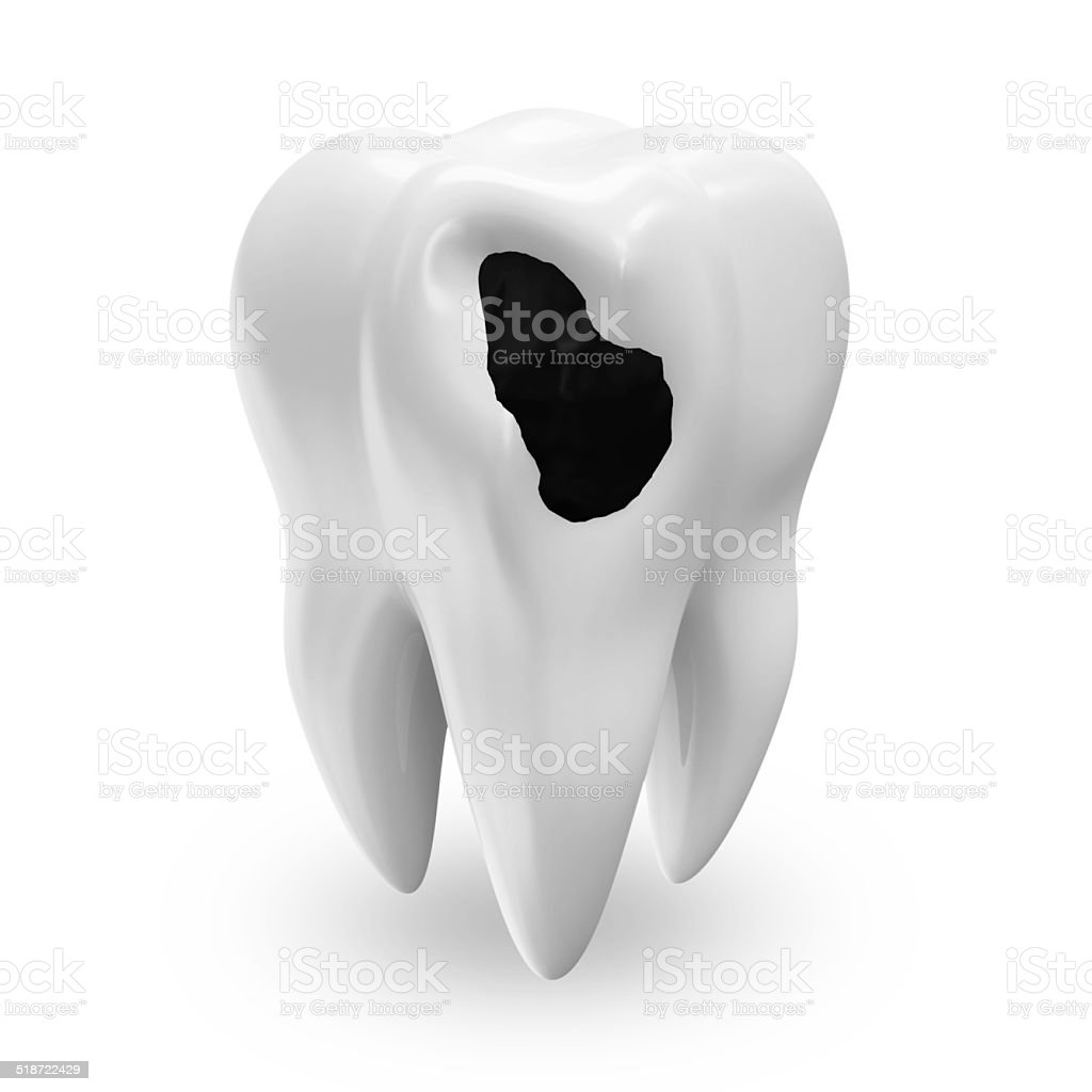 Illness Tooth isolated on white background stock photo