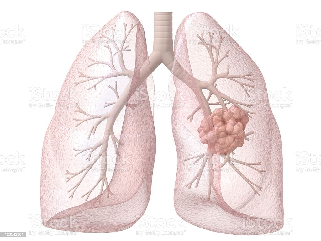 Illustration of cancerous area in lungs stock photo