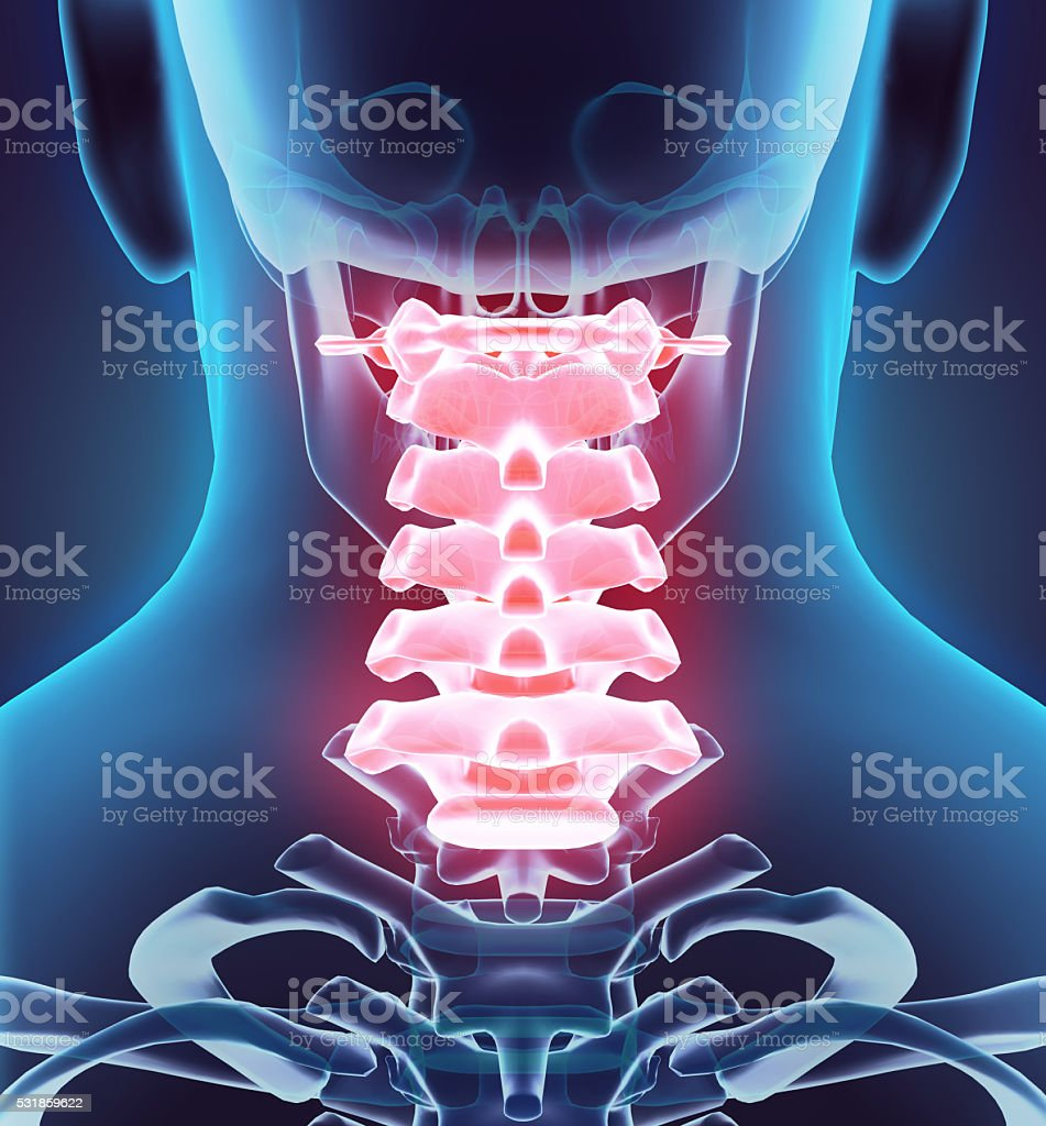 3D illustration of Cervical Spine, medical concept. stock photo
