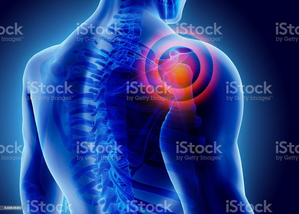 3D Illustration of shoulder painful. stock photo