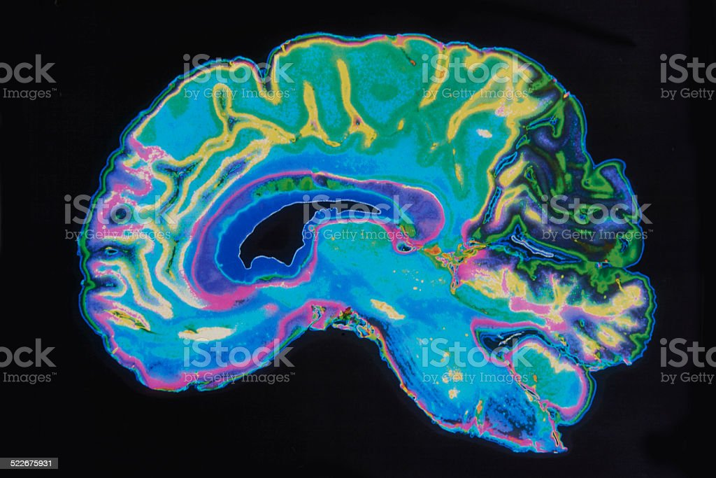MRI Image Brain On Black Background stock photo