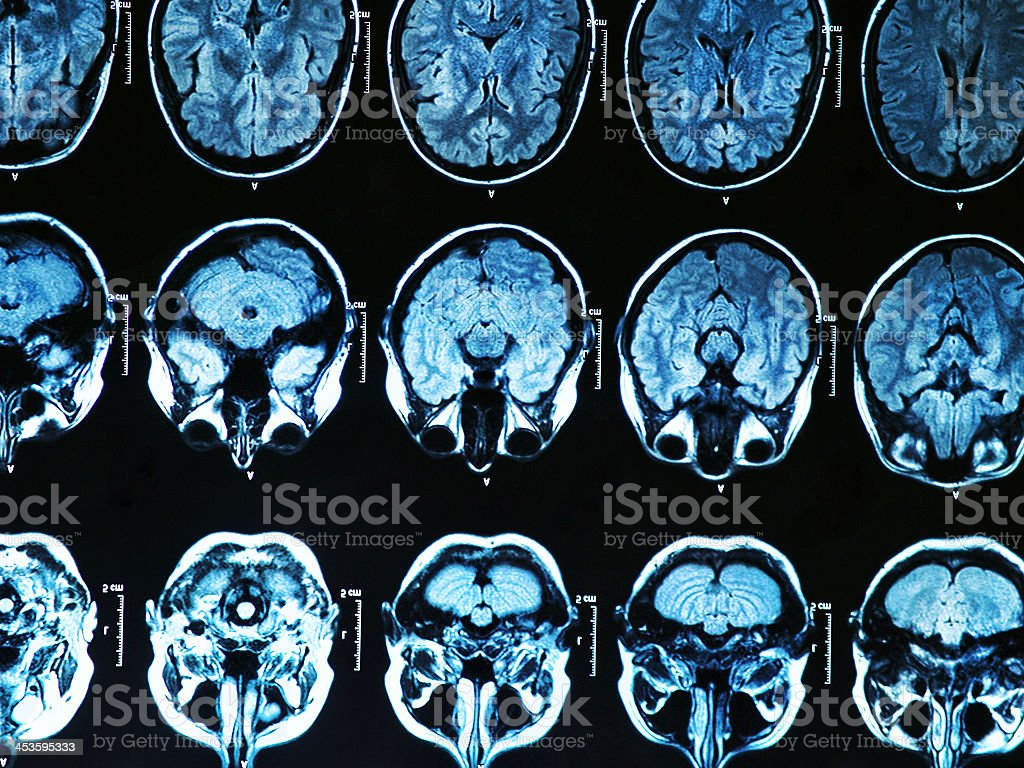 Image of several MRI brain scan images stock photo